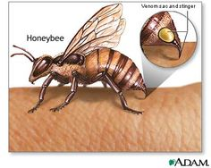 How to Treat Bee Sting Allergy: Stinging insects, such as honeybees, can cause severe allergic reactions by injecting venom into the skin of a person who is allergic to proteins contained within the venom.