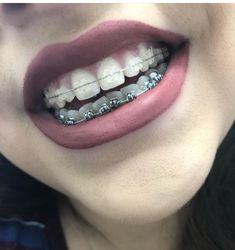 Braces Girls, Cute Braces, Dental Braces, Teeth Braces, Misaligned Teeth, Invisible Braces, Veneers Teeth, Crooked Teeth, Braces Colors