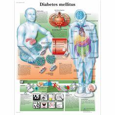 Diabetes grafiek - Diabetes Poster - anatomische grafieken - anatomie Posters - gezondheid onderwijs Charts - diabetische patiënteneducatie