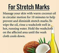 Stretch Marks!