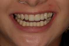 After photo of our patient. #beforeandafter #oralcare