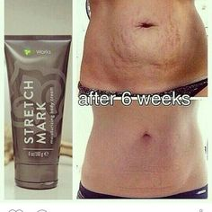 Get rid of those stretch marks that you hate to love and love to hate! CrazyWrapWay.com