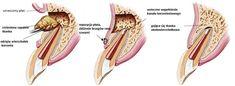 Resekcja wierzchołka korzenia zęba Dinner