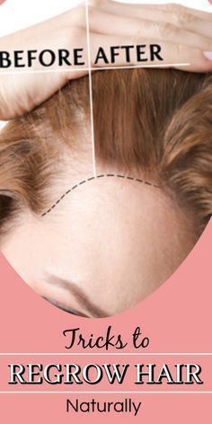 Simple Tricks On How To Get Healthy Hair Hair loss is a condition that affects many people. Hair loss can happen as a result of old age or other factors. Natural Hair Regrowth, Natural Hair Styles, Hair Follicles, Hair Regrowth Tips, Hair Regrowth Shampoo, Biotin Hair, Monat Hair, Hair Regimen, Regrow Hair Naturally