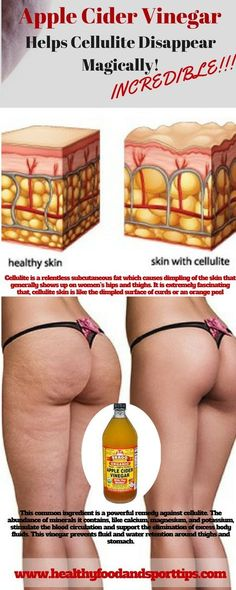 Apple Cider Vinegar Helps Cellulite Disappear Magically! INCREDIBLE!!!