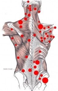"""Back Trigger Points. These are common areas where people develop """"knots"""" or hard spots where muscles get stuck together. By applying pressure and rubbing on these knots, back and neck muscles can be released and therefore pain is reduced."""