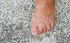 Unghie dei piedi gialle come mai? Come mai in particolare in estate le unghie dei piedi o delle mani possono diventare gialle e ispe unghie piedi estate