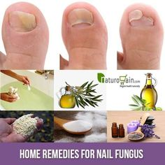 We present superb home remedies for nail fungus or onychomycosis that will help you in taming the situation in a safe, simple, natural and effectual manner.