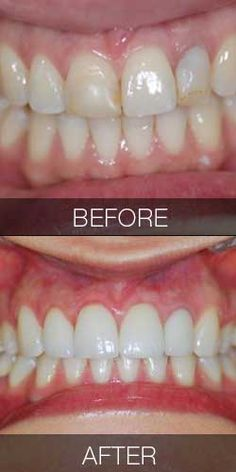 Before and after photo of porcelain veneers and tooth whitening performed by Dr. Anna Berik, Boston's top cosmetic dentist