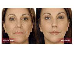 Injectable wrinkle fillers can give you a more youthful look for a fraction of what a traditional facelift costs. Most will fill lines and wrinkles in less than 30 minutes with results that can last from 4 months to more than a year.Injectable wrinkle fillers, unlike Botolinum Toxin injections that relax the muscle under a wrinkle, fill the line, crease, or area with one of several different substances. As a result, trouble spots nearly disappear.