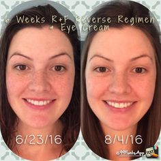 SiX WeeKs!  That's less than 60 days (which is our $$ back guarantee!!!) to see if you LOVE your brighter, more even and GLOWING skin!  Call/text 636-248-4463 or ReaganOglesby@gmail.com to get hooked up with 10% off and FREE shipping to your door!
