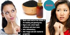 Acne And Oily Skin Get Rid Of Your Acne For Good! Acne is a nightmare cosmetic problem for sure. Many acne patients somet. Hormonal Acne Remedies, Natural Acne Remedies, Overnight Acne Remedies, Homemade Acne Treatment, Bad Acne, Back Acne Treatment, Acne Face Wash, Acne Scar Removal, Remove Acne