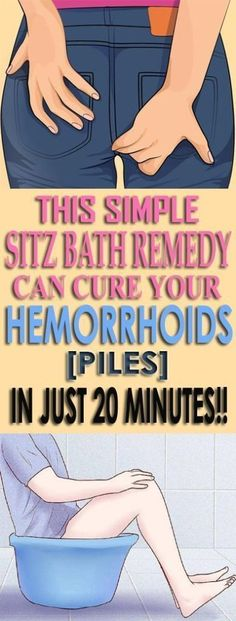 This Simple Sitz Bath Remedy Can Cure Your Hemorrhoids In Just 20 Minutes - Howsite