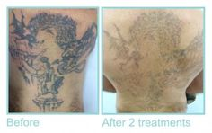 Back Tattoo Before and After 2nd Treatment by Eraze. This image clicked just after second treatment.