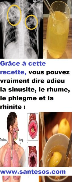 32 best santé images on Pinterest Health, Losing weight and Diet