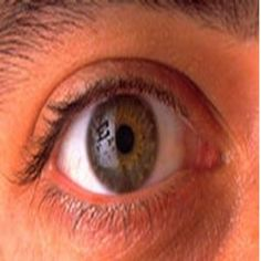Natural Remedies For Treating Cataracts