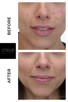 Discover effective acne removal treatements at Clinique Chloe aesthetic medicine Montreal.
