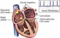 myocardial infarction atrial fibrillation type arrhythmia http://medical-helpful-info.blogspot.com/2012/08/atrial-fibrillation-medications.html  Other types of superventricular arrhythmias occur less frequently during myocardial infarction.