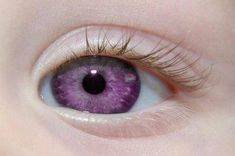 """Alexandria's Genesis, also known as """"violet eyes"""" (a mutation). When someone is born with Alexandria's Genesis, his eyes are blue or gray at birth.After six months, the eyes begin to change their original color to purple, and it lasts six months. Alexandria Genesis, Yennefer Of Vengerberg, Violet Eyes, All Things Purple, Science And Nature, Genetics, Beautiful Eyes, His Eyes, Oeuvre D'art"""