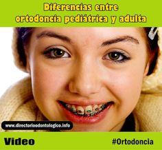 ortodoncia-adulta-pediatrica
