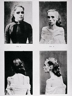 "Even in the 19th century, psychiatrists saw patients with eating disorders. These images, published in Paris in 1892, depict a young woman with ""visceral hysteric anorexia"" who gradually gave up eating until she developed cachexia - a condition where the body is so malnourished it can't be reversed. The symptoms of the disease remain relatively unchanged since the 19th century, when robust women were deemed attractive."