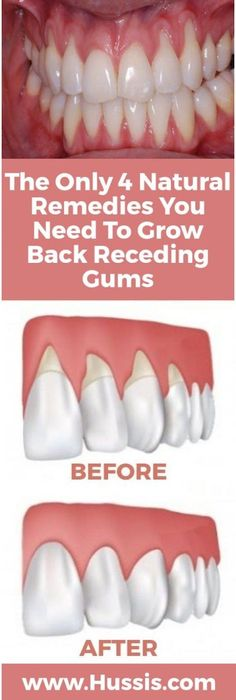 Home Remedies The Only 4 Natural Remedies You Need To Grow Back Receding Gums - The Healthy - There are a lot of reasons why gums recede and it can become quite a health problem if this happens. If you are experiencing receding gums then you have found … Teeth Health, Oral Health, Dental Health, Dental Care, Healthy Teeth, Gum Health, Kidney Health, Healthy Fats, Grow Back Receding Gums