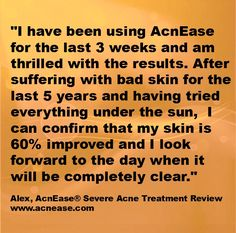 Alex is getting rid of his severe #acne with AcnEase after years of trying everything. #acne www.acnease.com