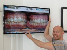 Braces Before And After, Braces Tips, Dental Braces