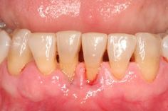 This picture is a good example of a patient in the advanced stages of periodontal disease.