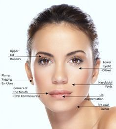 Dermal fillers are not just for nasolabial folds and lips.