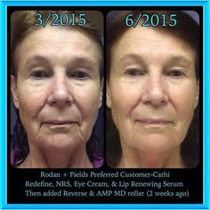 Another incredible Rodan + Fields real results before and after!  Want results like this!?!  Message me!