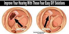 Hearing loss may be one of the worst symptoms that comes with aging. Even if you take excellent care of your ears and your hearing throughout your life, it's likely that you'll suffer hearing loss at some point. Instead of giving up and preparing to spend your life asking people to talk just a little ...