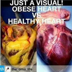 Which do yoi prefer??? Get Healthy, Healthy Life, Healthy Living, Healthy Heart, Eating Healthy, Clean Eating, Healthy Foods, Healthy Recipes, Fitness Motivation