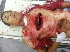 Nobody deserves this! Pray for Gaza!