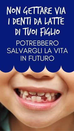 #denti #dentidalatte #figli #stiledonna I Love My Son, Problem Solving, Good To Know, Einstein, The Cure, Remedies, Wellness, Lol, Personal Care