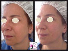 Antes y despues de solo 2 sesiones de contour facial