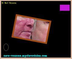 Dr Weil Rosacea 182749 - Cure Rosacea