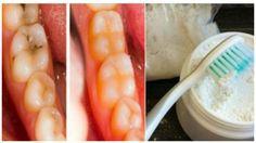Luego de usar esta receta Ella curo todas sus caries y limpio sus dientes en solo 2 dias, PRUEBALA!!