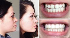 My Journey To Fix My Underbite - Orthodontic Treatment & Double Jaw Surgery - Em GeeElle Braces Off, Dental Braces, Braces Before And After, Double Jaw Surgery, Face Transformation, Brace Face, Brush My Teeth