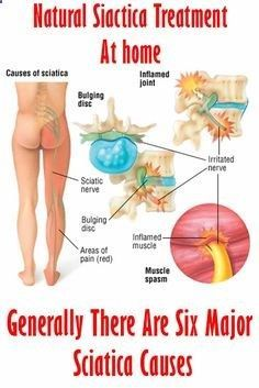 [Article and Treatment Tips] Generally There Are Six Major Sciatica Causes #sciatica #pain #relief #symptoms #treatment #backpain #lowerbackpain #NaturalSciaticaTreatment