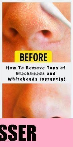 #Black #Blackheads #Nose #REMOVAL #Whiteheads #Blackhe#b Blackheads Nose, How To Remove