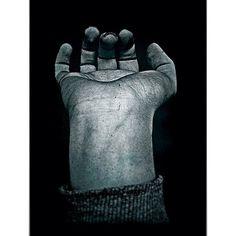 #Marcas da #guerra - Marks of #war. #Scars #hand #wrist #pulso #mão | Flickr – Compartilhamento de fotos!