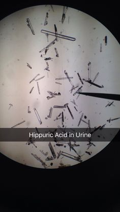 Hippuric Acid in Urine Laboratory Humor, Medical Laboratory Scientist, Medical Careers, Medical Technology, Energy Technology, Med Lab, Lab Tech, Nursing Notes, Biochemistry