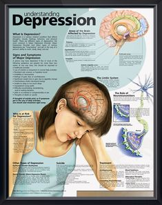 Understanding Depression anatomy poster mental health poster defines three main types of depression and role of neurotransmitters. Psychotherapy chart for doctors and nurses.