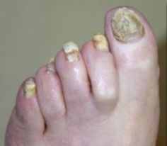 Foot and Nail Fungus Home Remedies ~ Castor oil, apple cider vinegar, tea tree oil, turmeric and garlic are all natural cures for foot and nail fungus.