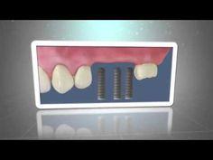 los implantes dentales en Caredent Fuenlabrada