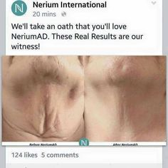 Try yours today! 30 day money back guarantee! www.stephpeters.nerium.com