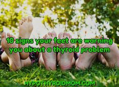 The feet are a good barometer of thyroid health. They often show obvious signs of disease years and even decades before a thyroid diagnosis. Thyroid Test, Thyroid Hormone, Thyroid Disease, Thyroid Health, Thyroid Imbalance, Heart Disease, Symptoms Of Thyroid Problems, Hypothyroidism Symptoms, Thyroid Issues