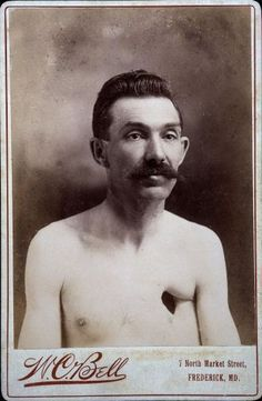 [cabinet card portrait of & Eavens, a man with a hole in his chest& W. Bell via the Wellcome Collection, Iconographic Collections Old Photos, Vintage Photos, Creepy, Scary, Human Oddities, Bizarre, Medical History, Human Condition, Weird And Wonderful