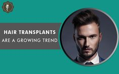 @Hair @Transplant @Trend  Hair can define your personality so don't make them lost completely. Kabera Global help you to give your #hair back with hair #transplant #treatment.